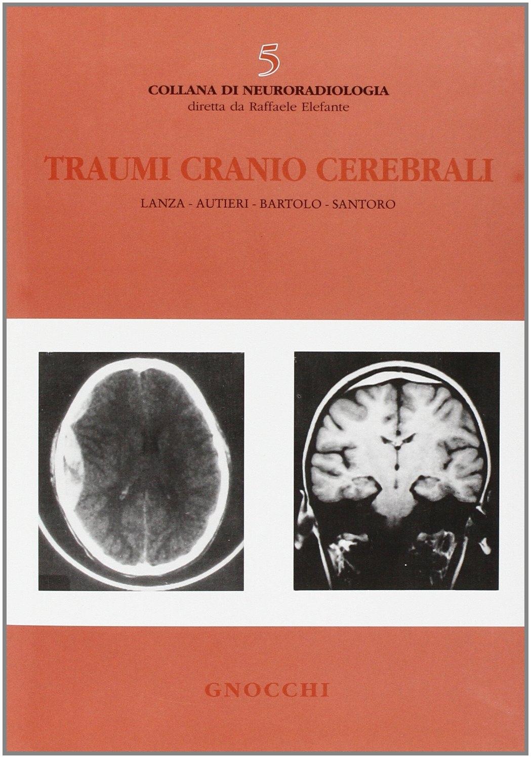 Traumi cranio cerebrali