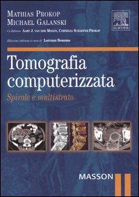 Tomografia computerizzata. Spirale e multistrato.