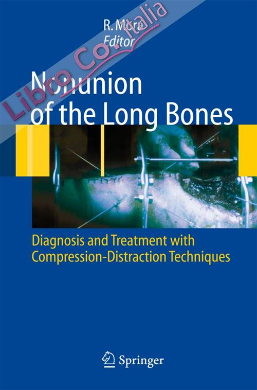 Nununion of the long bones. Diagnosis and treatment with compression-distraction techniques