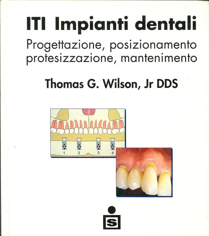 ITI Impianti Dentali. Progettazione, Posizionamento, Protesizzazione, Mantenimento
