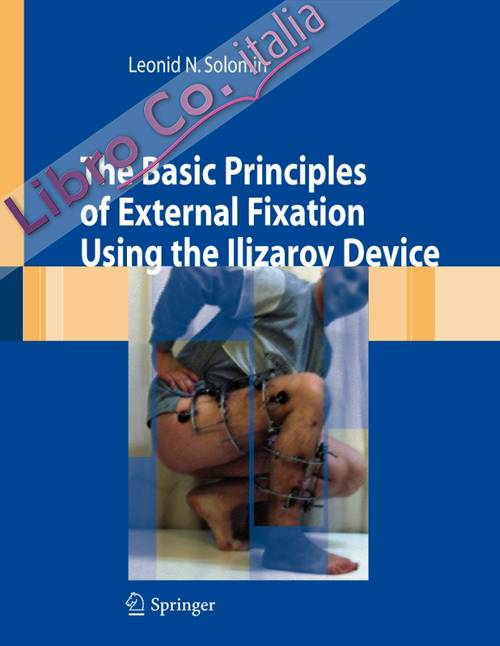 The basic principles of external skeletal fixation using Ilizarov device.
