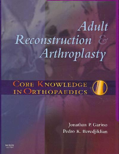 Adult Reconstruction and Arthroplasty