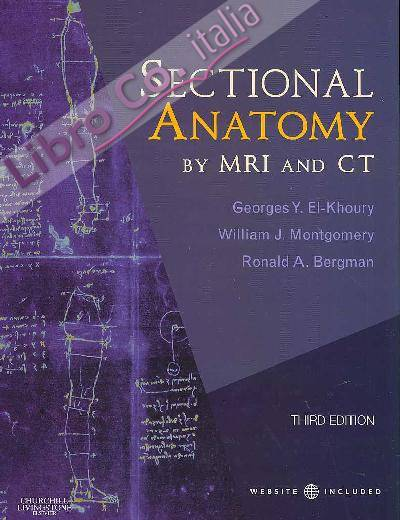 Sectional Anatomy by MRI and CT.