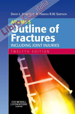 Adamss Outline of Fractures