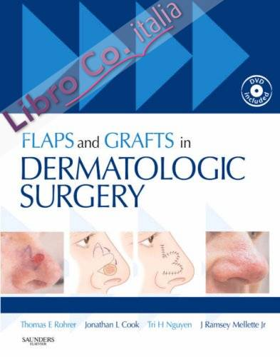 Flaps and Grafts in Dermatologic Surgery.