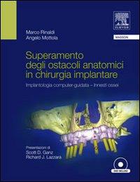 Superamento degli Ostacoli Anatomici in Chirurgia Implantare. Implantologia Computer-Guidata Innesti Ossei. con DVD.