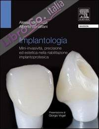 Implantologia. Mini-invasività, precisione ed estetica nella riabilitazione implantoprotesica