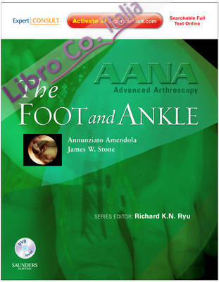 AANA Advanced Arthroscopy: The Foot and Ankle: Expert Consult