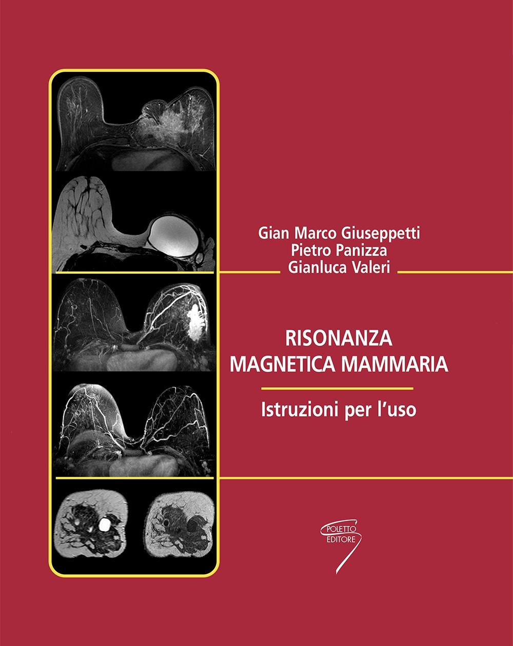 Risonanza magnetica mammaria. Istruzioni per l'uso