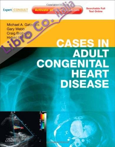 Cases in Adult Congenital Heart Disease - Expert Consult: On.