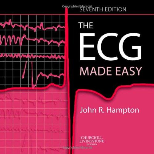 ECG Made Easy.