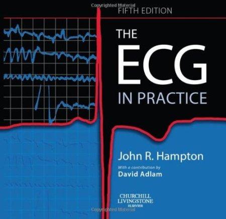 ECG in Practice.