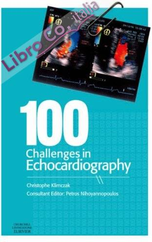 100 Challenges in Echocardiography.