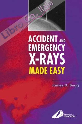 Accident and Emergency X-Rays Made Easy.