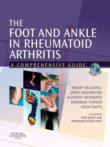 Foot and Ankle in Rheumatoid Arthritis