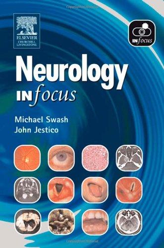Neurology in Focus.