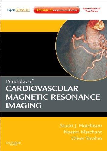 Principles of Cardiovascular Magnetic Resonance Imaging.