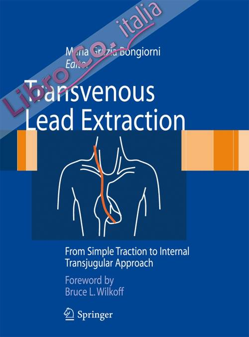 Transvenous lead extraction from simple traction to transjugular approach