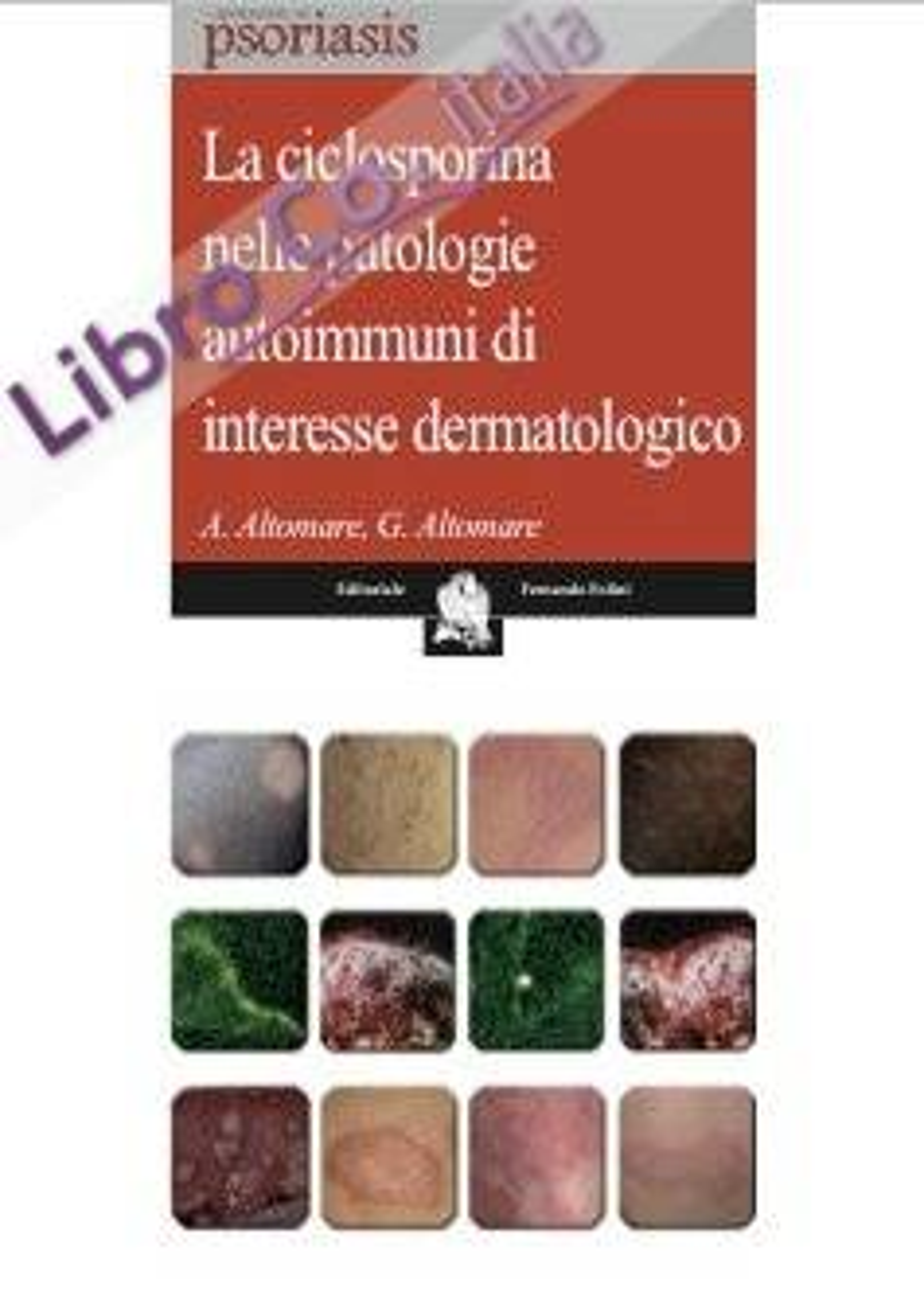 La ciclosporina nelle patologie autoimmuni di interesse dermatologico.