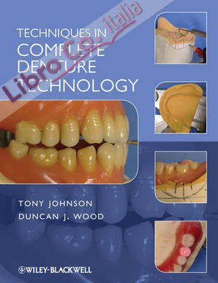 Techniques in Complete Denture Technology.