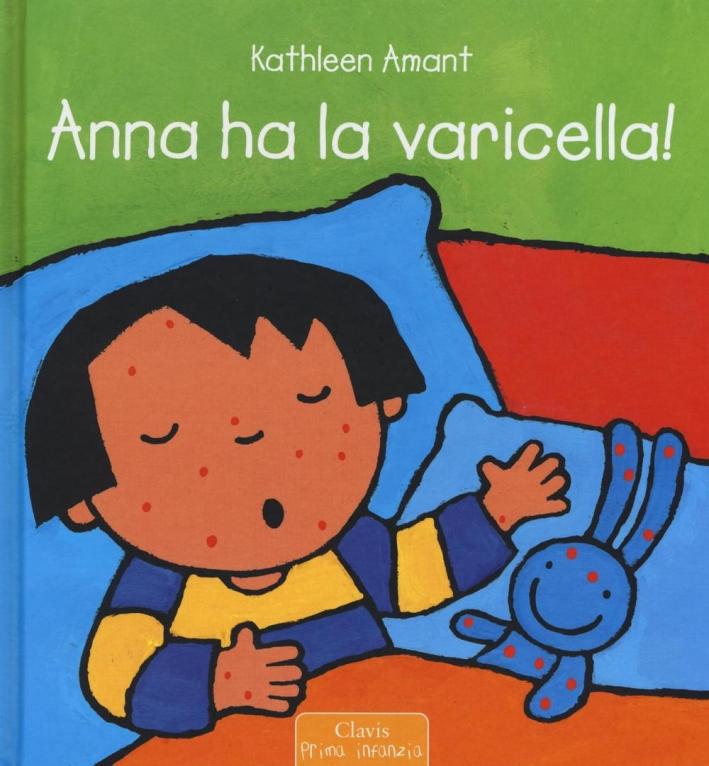 Anna ha la varicella.