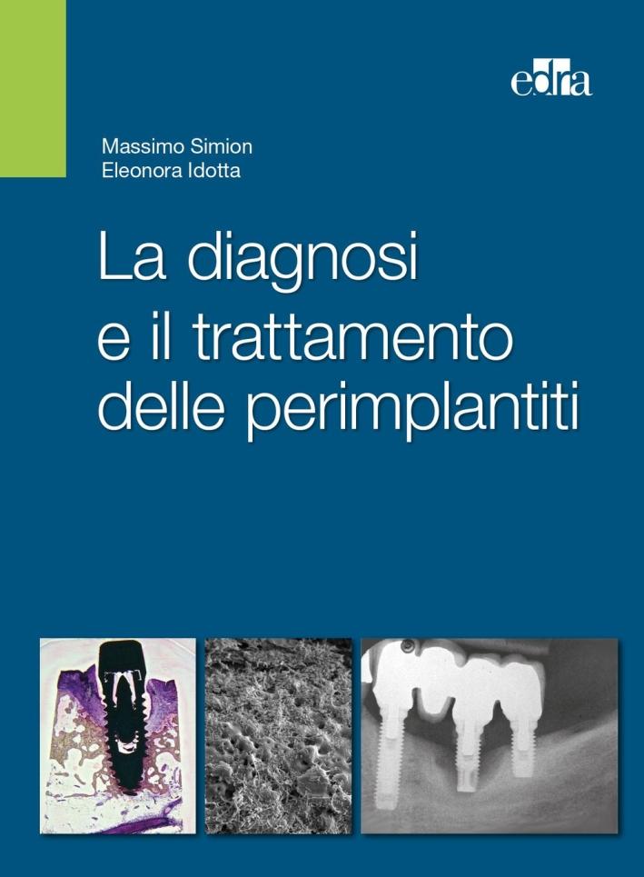 La diagnosi e il trattamento delle perimplantiti.