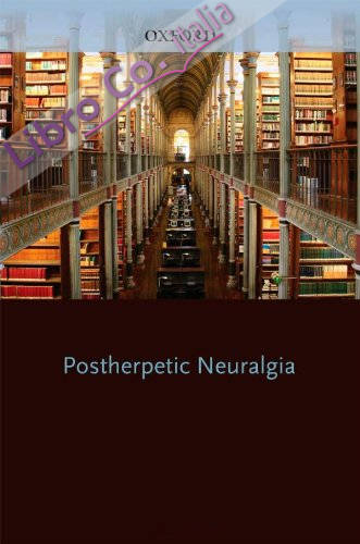 Oxford American Pocket Notes Post Herpetic Neuralgia