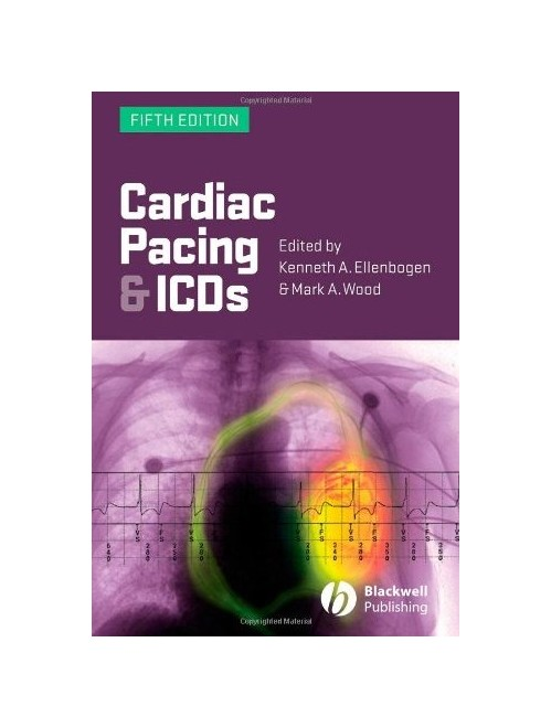 Cardiac Pacing and ICDs.